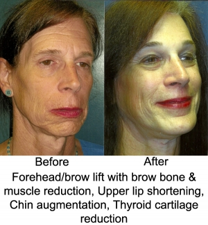 Upper_Lip_Shortenting_FHBL_Chin_Aug_Trach1