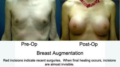 Breast Augmentations1