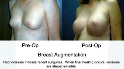 Breast Augmentations2