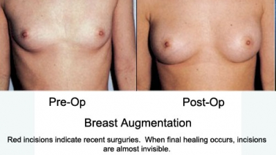Breast Augmentations3