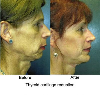 thyroid_cartilage reduction2